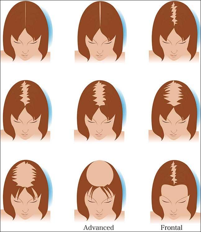 Kadınlarda Saç Dökülmesi ve Tedavi Yöntemleri