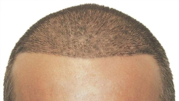 Arapların Gözdesi: Tıraş Gerektirmeyen Saç Ekimi