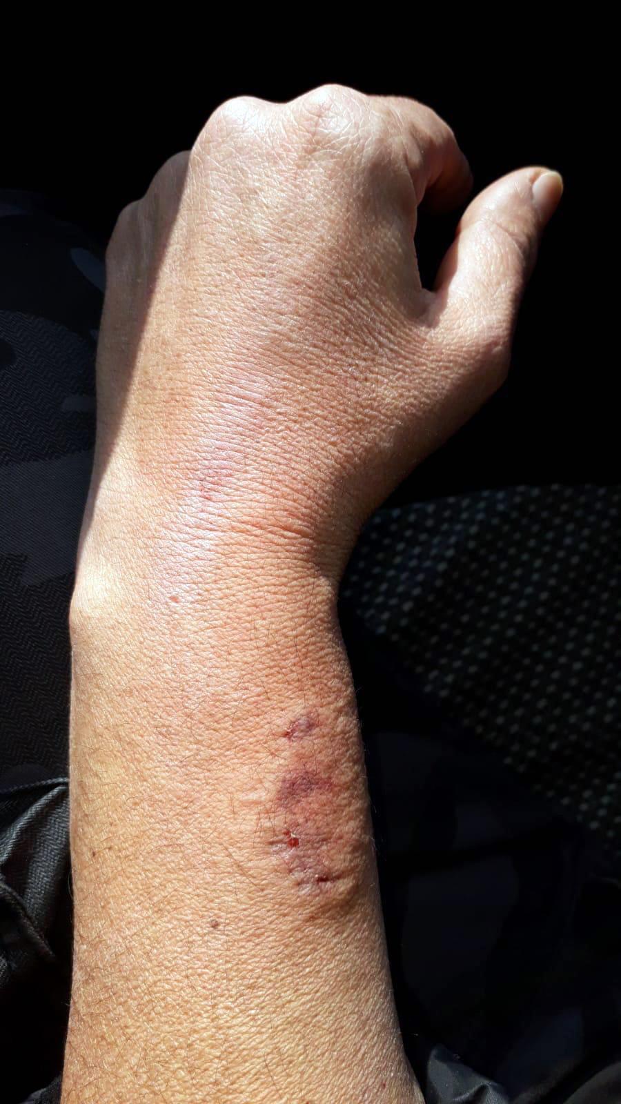 HDP'li vekil polisin kolunu ısırdı
