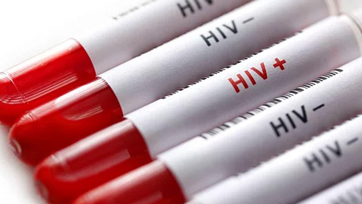 Bilim insanları, 2000 yılından bu yana ilk kez yeni bir HIV türü keşfetti