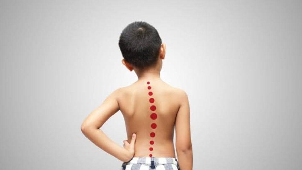 Çocuklarda omuz asimetrisine dikkat: Skolyoz olabilir