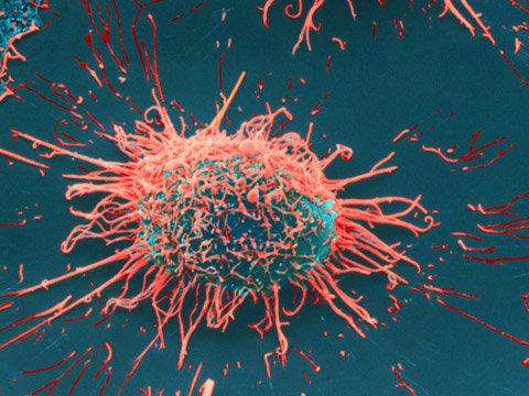 Kanser ile ilgili tarihi buluş!