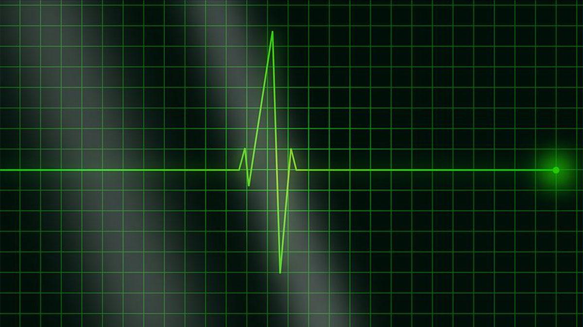 Bir ilk: Kalbi 6,5 saat duran kadın hayata döndü