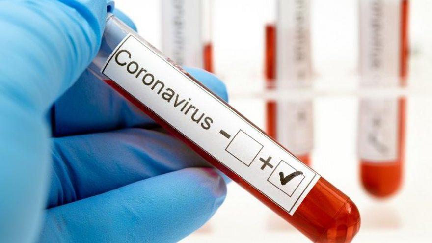 Lejyoner koronavirüs ile benzer