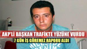 AKP'li başkandan şikayetçi oldu: Tekmeyi suratıma yedim