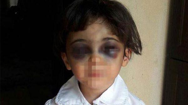 3 yaşındaki çocuğa üvey anne şiddeti!