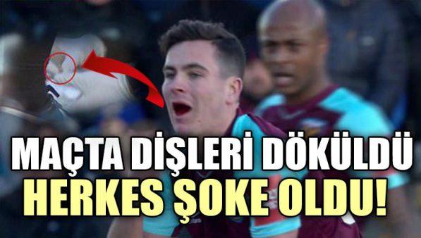 West Ham'lı genç futbolcunun dişleri döküldü! Yerden topladılar…