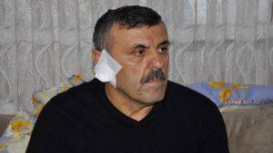 Kavgada dehşet anları: Kavga ettiği kişinin kulağını ısırarak kopardı