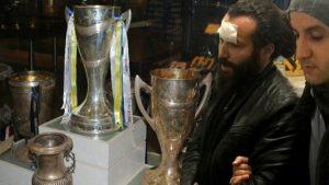 Cama kafa atarak kupa çalmaya çalışan Trabzonluya şok!