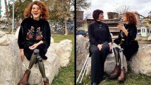 İçişleri Bakanlığı'ndan IŞİD saldırısında bacaklarını kaybeden dansçı kadına tazminat