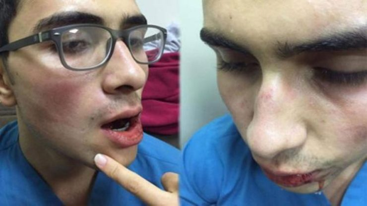 Sağlık çalışanına yumruklu saldırı