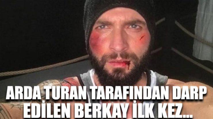 Arda Turan tarafından darp edilen Berkay ilk kez…