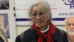 76 yaşındaki kadının darp edilmesinin bedeli 15 ay taksitle 3 bin TL!